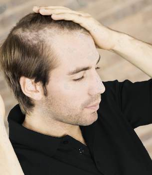 Sacrificing masculinity for hair